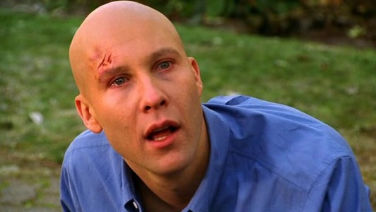 "Lex, looking crazy in ""Shattered"""